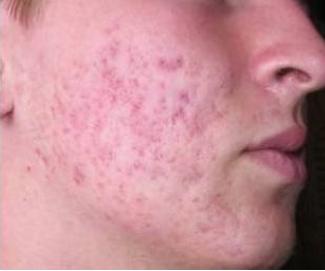 Problémy s akné