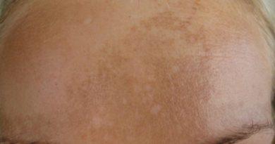 Pigmentové svrny v obličeji